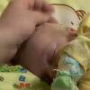 Врожденный буллёзный эпидермолиз