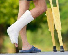 Как лечить артроз голеностопного сустава