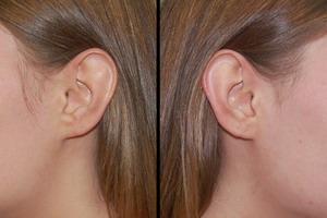 Что такое атерома мочки уха
