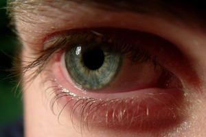 Что делать при кровоизлиянии в глаз?