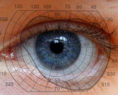 Сужение и выпадение поля зрения