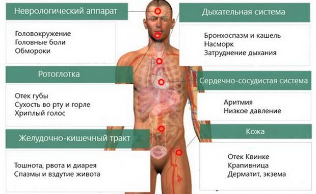 фото аллергия пищевая