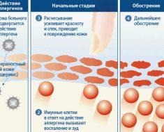 Инсектная аллергия на укусы насекомых: фото и симптомы
