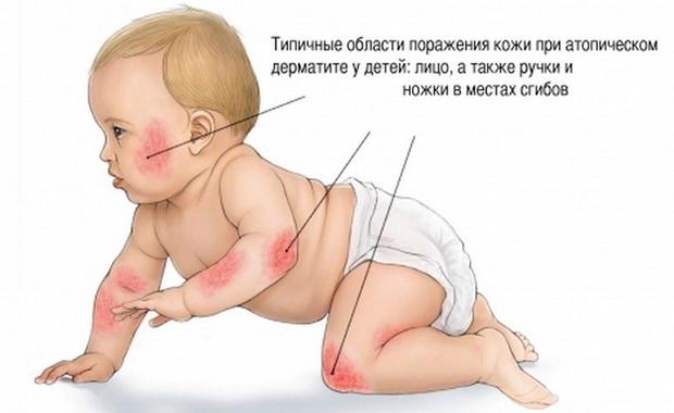 Пруригинозная форма атопического дерматита фото