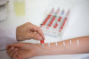 Диагностика аллергии методом кожного тестирования