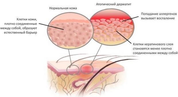 Виды экземы основные типы дерматита