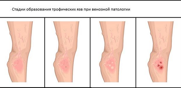 Изображение - Кожно кожные заболевания суставов 1101w-48