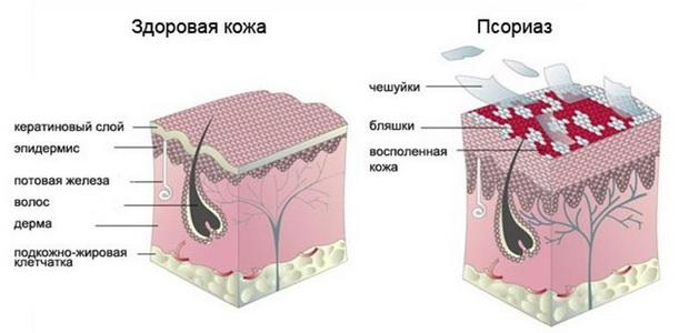 Изображение - Кожно кожные заболевания суставов 1101w-49