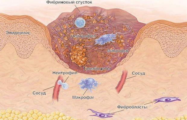Изображение - Кожно кожные заболевания суставов 1101w-50