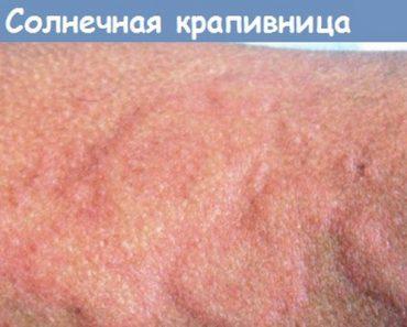Виды крапивницы у детей и взрослых: фото, симптомы и лечение