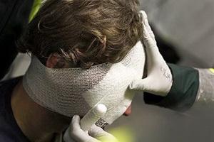Черепно-мозговая травма: виды, признаки и первая помощь