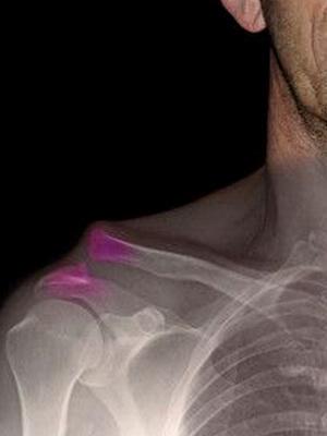 Вывих сустава: виды, симптомы и оказание первой помощи