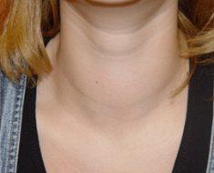 Заболевание щитовидной железы гипертиреоз: симптомы и признаки болезни