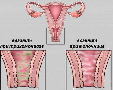 Женские болезни и их лечение народными средствами