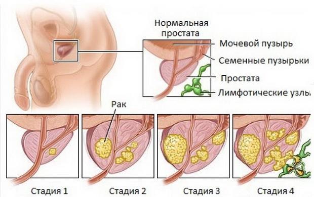 Рак яичника в менопаузе